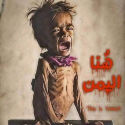 متاسفانه هر روز که میگذره اخبار ناگوارتری از #یمن به گوش میرسه.هر روز خبر مرگ کودکان بیشتری در رسانه های جهان منتشر میشه. جهانی که براش دیگه حقوق بشر معنایی نداره. تمام جبهه کفر در مقابل یک ملت #مستضعف صف کشیده و گرگ ها هر لحظه به قلب این سرزمین نزدیک تر میشن... اما امان از مسئولین کشوری که خودش رو ام القرای جهان اسلام و تشیع میدونه انگار در این سرزمین هیچ مسئولی وجود نداره که از راه های مختلف و فشار های بین المللی برای پایان این جنگ خونین اقدام کنه. #پایان_فوری_جنگ_یمن
