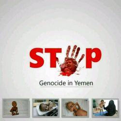 #یمن تنها نیست! #نسل کشی در یمن را متوقف کنید .