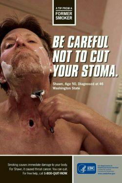 》مراقب باشید سوراخ گلو (استومای) خود را نبُرید  ○این تصویر واقعی است و متعلق به آقای شاون 50 ساله اهل واشنگتن است که از چهار سال قبل تشخیص سرطان گلو برای او داده شده، به دلیل اختلال در تنفس، پزشکان مجبور به سوراخ کردن راه هوایی او شده اند  ♡همین الان میتوانید #سیگار را ترک کنید  موضوع:  #سیگار_و_دخانیات