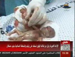 """جنین شش ماهه کوچکترین شهید در حملات رژیم صهیونیستی به نوارغزه/ یا حسین :""""("""