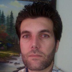 اولین عکس بعداز برداشتن چسب بینی (جراحی 1ماه قبل)