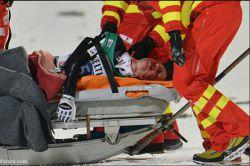 قهرمان اسکی جهان  سیمون آمون دیروز در حال ثبت رکود پرش 136متری دچار سانحه شد و از ناحیه صورت زخمی شد و هوشیاری خود را از دست داد