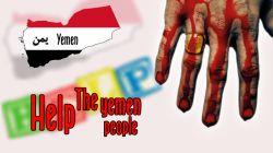جنایت عربستان در یمن + کشتار شیعیان یمن + قتل عام مردم مظلوم یمن + گرافیست مسلمان + مشکات گراف
