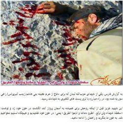 تصویری تکان دهنده از یک شهید مدافع حرم
